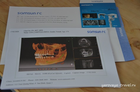 Снимки и диск из SAMSUN RC.